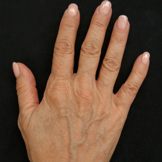 Profhilo-hands-1-before