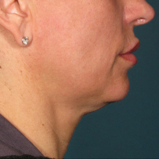 Ultherapy-Hals-BEFORE
